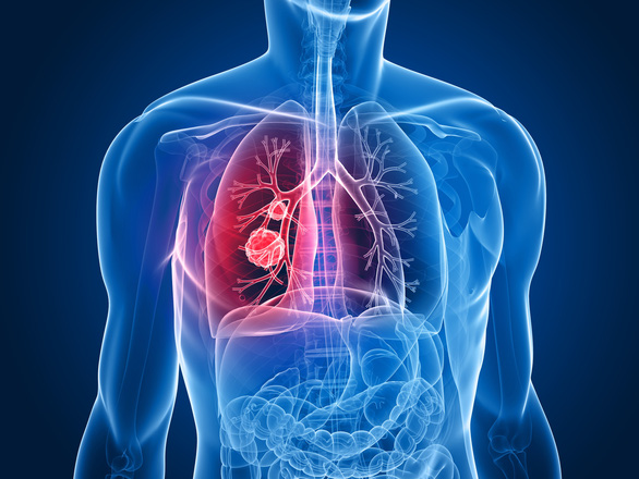 Hiểu đúng về sức khỏe tâm lý, dinh dưỡng trong điều trị ung thư phổi - Ảnh 1.