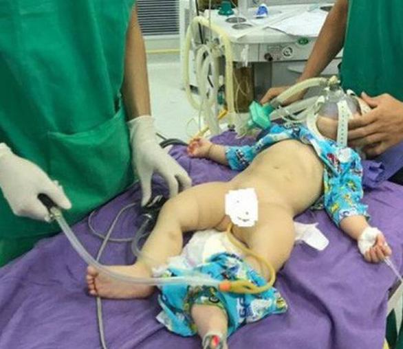 Điều trị lồng ruột ở trẻ em bằng kỹ thuật bơm hơi tại BVĐK Tâm Trí - Ảnh 2.