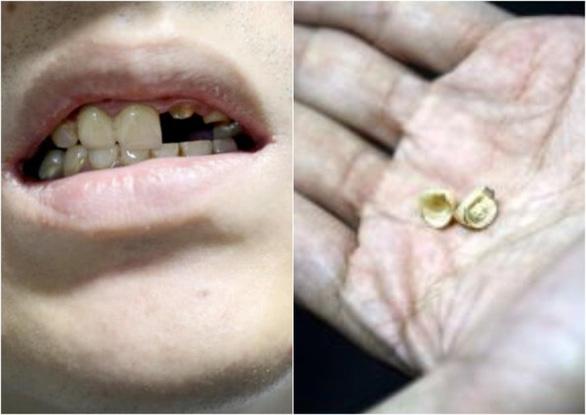 Khách hàng cầu cứu cảnh sát vì gãy răng khi ăn bánh mì - Ảnh 1.