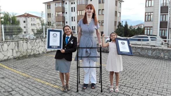 Hy hữu: Nam nữ cao nhất thế giới đều là người Thổ Nhĩ Kỳ - Ảnh 1.