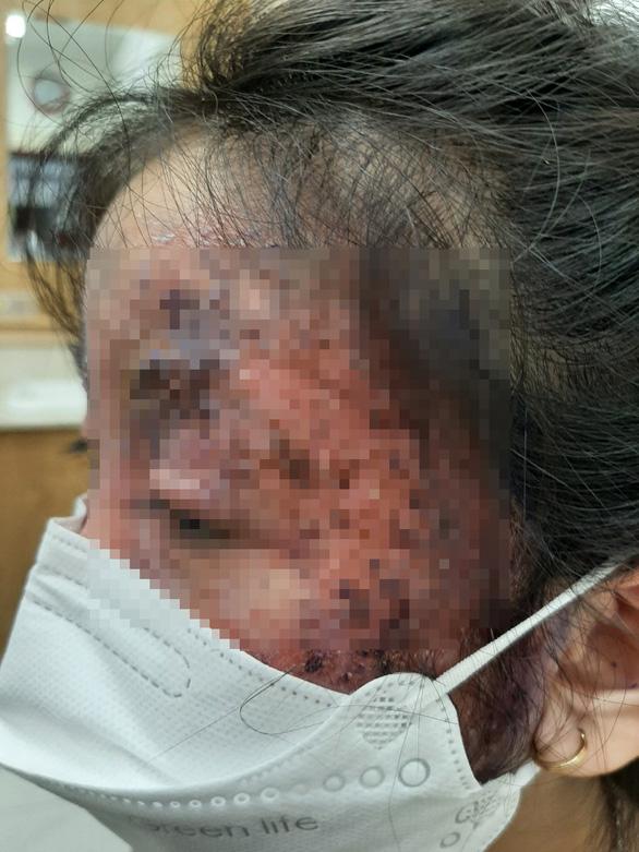 Bé gái tổn thương nửa mặt do trị nấm sai cách - Ảnh 1.