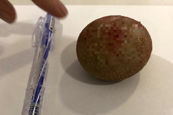 Lấy cục sỏi to như quả trứng, cứng như đá trong bàng quang bệnh nhân nam - Ảnh 1.