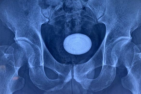 Lấy cục sỏi to như quả trứng, cứng như đá trong bàng quang bệnh nhân nam - Ảnh 2.