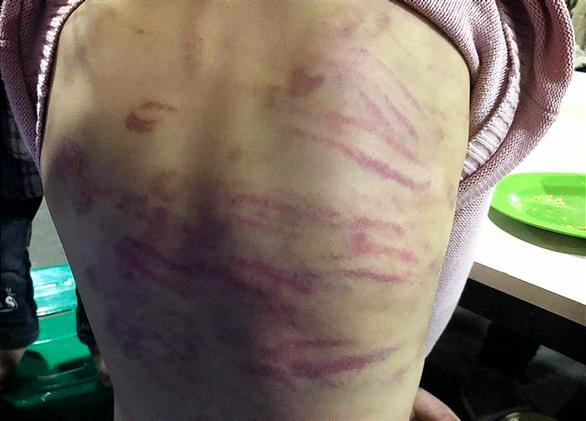 Bé gái 12 tuổi nghi bị mẹ đẻ bạo hành, người tình của mẹ cưỡng bức nhiều lần - Ảnh 2.