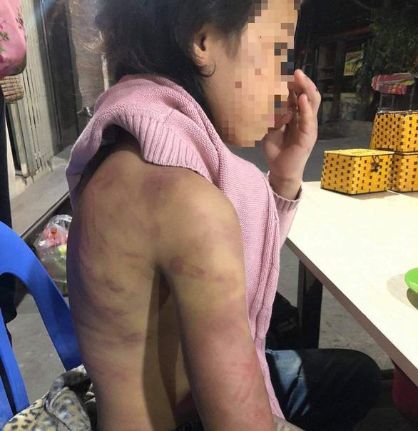 Hà Nội chỉ đạo xử lý vụ bé gái 12 tuổi nghi bị bạo hành, xâm hại - Ảnh 1.