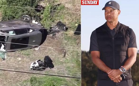 Tai nạn xe hơi nghiêm trọng, Tiger Woods bị giập nát cả hai cẳng chân - Ảnh 1.