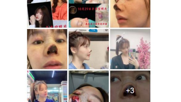 Người đẹp Trung Quốc công khai ác mộng thẩm mỹ - Ảnh 2.