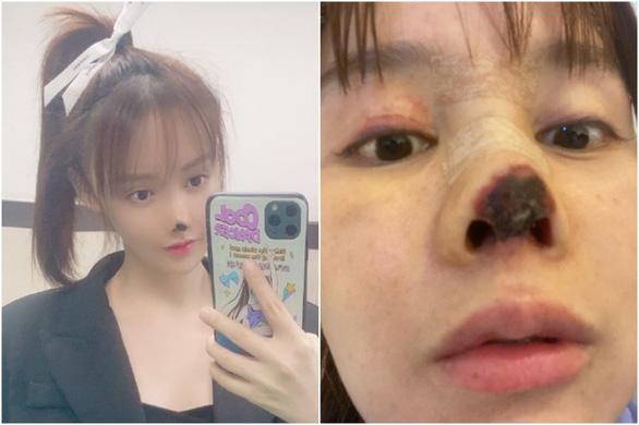 Người đẹp Trung Quốc công khai ác mộng thẩm mỹ - Ảnh 1.