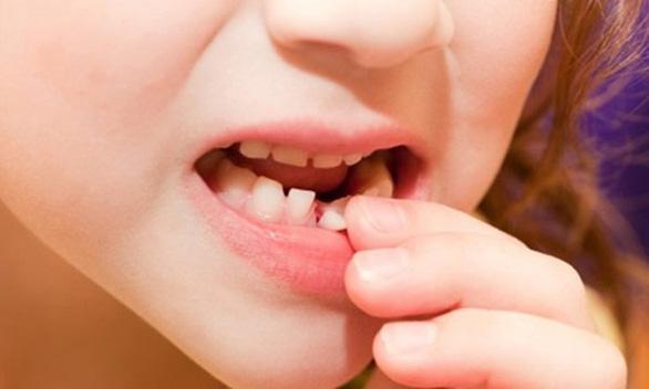 Bé gái 8 tuổi bị răng sữa rơi vào phổi khi tự nhổ răng tại nhà  - Ảnh 1.