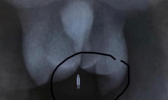 Bạn để bút bi dưới ghế, nam sinh 12 tuổi chấn thương vùng kín mổ cấp cứu - Ảnh 1.