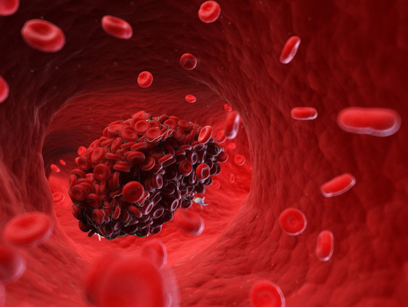 COVID-19 và chứng đông máu chết người được phát hiện một năm trước - Ảnh 1.