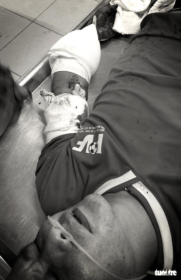 Bắt nghi phạm dùng kiếm giọt lệ chém đứt gần lìa cánh tay của chủ nợ - Ảnh 2.