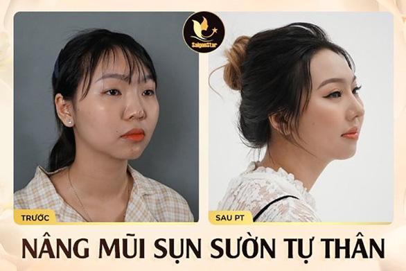 Bác sĩ Nguyễn Hữu Hoạt - chuyên gia phục hồi mũi hỏng nổi tiếng tại TP.HCM - Ảnh 4.