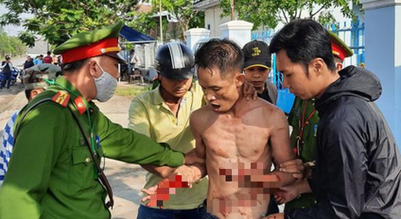 Khống chế người đàn ông vừa ra tù 'ngáo đá' cầm dao tự cắt tay, cổ mình - Ảnh 1.