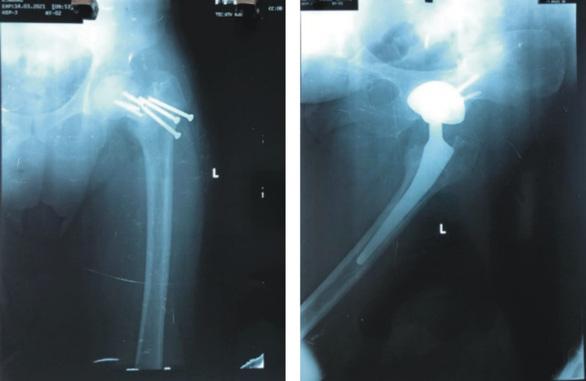 Khớp háng nhân tạo - cứu cánh giúp bệnh nhân gãy cổ xương đùi tránh tàn phế - Ảnh 1.