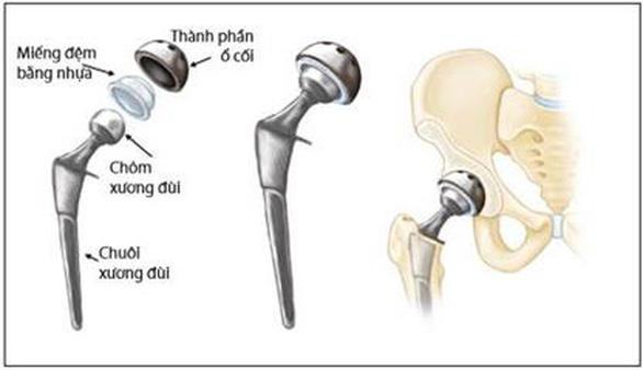 Khớp háng nhân tạo - cứu cánh giúp bệnh nhân gãy cổ xương đùi tránh tàn phế - Ảnh 2.