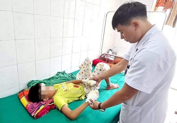 Bé trai 13 tuổi dập nát hai bàn tay vì pin phát nổ - Ảnh 1.
