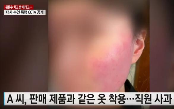 Vợ đại sứ Bỉ tại Hàn Quốc nhập viện sau khi tát nổ đom đóm người bán hàng - Ảnh 1.