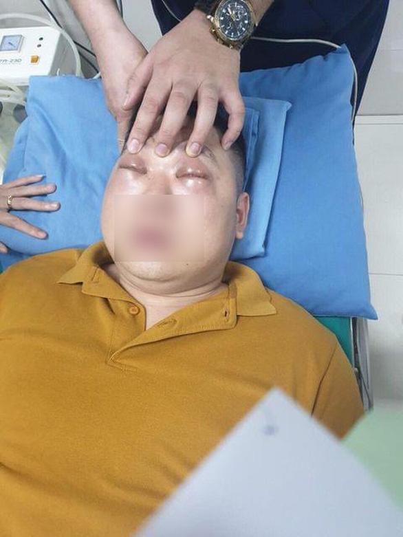 Thanh niên 25 tuổi sốc phản vệ nặng, phù nề, không mở được mắt vì thái 1 củ hành - Ảnh 1.