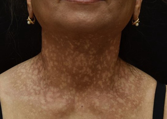 Người phụ nữ mắc bệnh hiếm gặp, mặt, cổ lốm đốm, rụng tóc và lông mày - Ảnh 1.