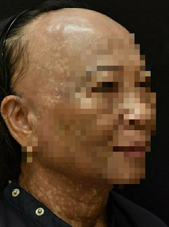 Người phụ nữ mắc bệnh hiếm gặp, mặt, cổ lốm đốm, rụng tóc và lông mày - Ảnh 2.