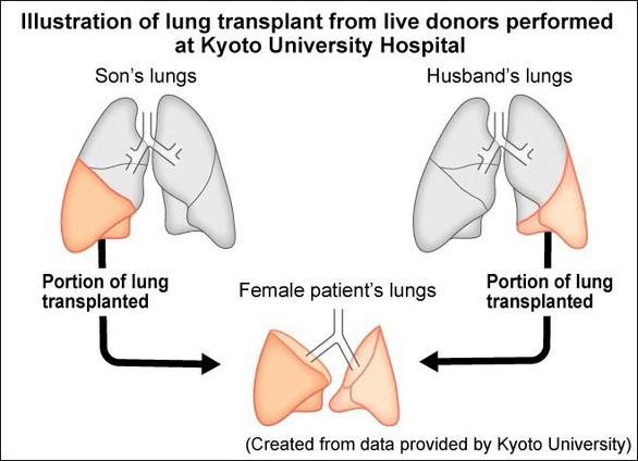 Lần đầu tiên trên thế giới: Ghép phổi từ 2 người sống cho bệnh nhân COVID-19 - Ảnh 2.