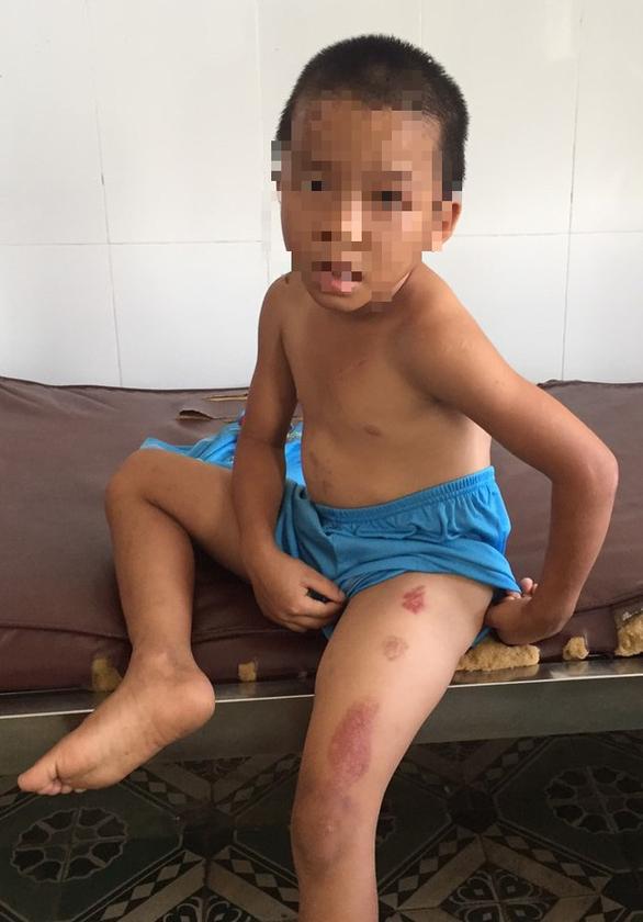 Bé trai 6 tuổi bị cha dượng bạo hành dã man - Ảnh 1.