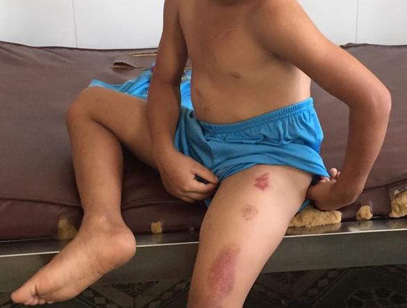 Bắt tạm giam cha dượng bạo hành dã man bé trai 6 tuổi - Ảnh 1.