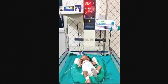 Em bé sơ sinh Ấn Độ chiến thắng nguy kịch COVID-19 - Ảnh 1.