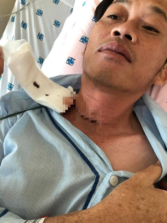 Hoài Linh từng đến Bệnh viện Chợ Rẫy điều trị ung thư tuyến giáp - Ảnh 1.
