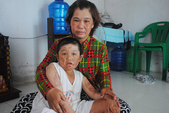 Thương con ai kể tháng ngày - Kỳ cuối: Mẹ bán vé số mong chữa bệnh cho con - Ảnh 1.