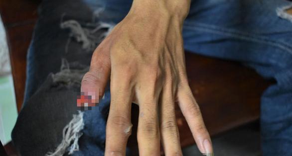 Phút kinh hoàng người cha dùng tay cạy răng chó pitbull để cứu con - Ảnh 2.