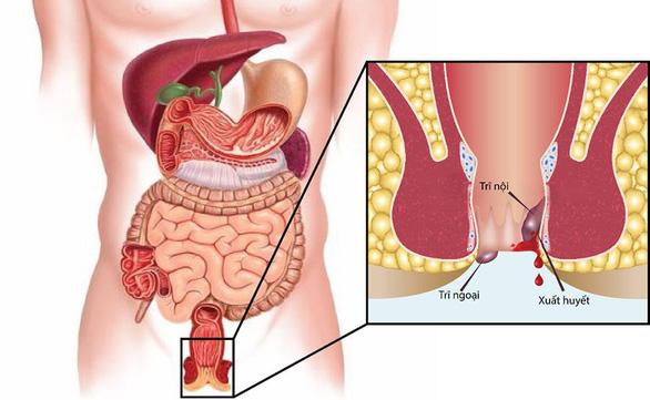 Triệu chứng bệnh trĩ và biện pháp phòng ngừa - Ảnh 1.