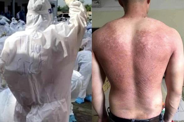 Từ 14h ngày 1-6: Trực tuyến với y bác sĩ từ tâm dịch COVID-19 Bắc Giang - Ảnh 4.
