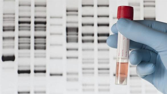 Nghiên cứu mới: Gene gây rối loạn nhịp tim dẫn đến đột tử - Ảnh 2.