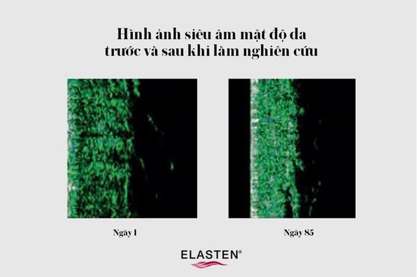 ELASTEN® Việt Nam - Khám phá hiệu quả trẻ hóa làn da theo chuẩn Đức - Ảnh 1.