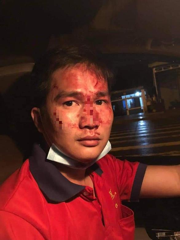 Điều tra vụ người đàn ông đánh tài xế taxi nhập viện, gây phẫn nộ trên mạng xã hội - Ảnh 1.