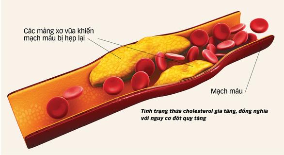 Kiểm soát thừa cholesterol: giảm 27% nguy cơ đột quỵ - Ảnh 1.