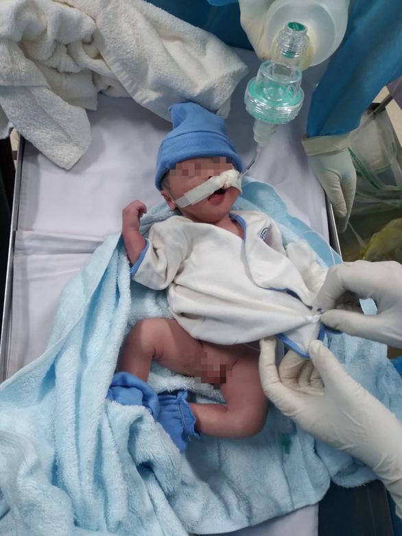 Bé trai kháu khỉnh nặng 2kg chào đời trong phòng hồi sức điều trị COVID-19 - Ảnh 1.
