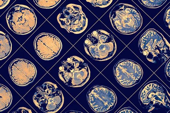 Phần mềm AI của IBM giúp chẩn đoán diễn tiến bệnh Parkinson - Ảnh 1.