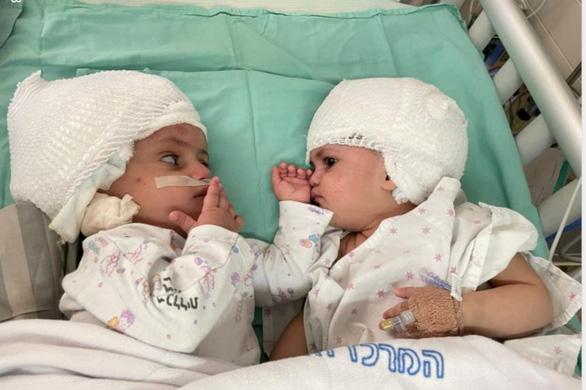 Tách thành công trẻ sinh đôi dính đầu ở Israel - Ảnh 1.