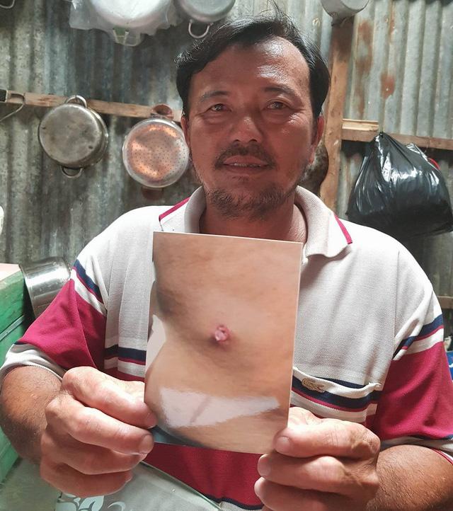 Ông Dũng cho rằng ông bị đội trưởng Đội QLTT số 13 bắn bị thương - Ảnh: CTV