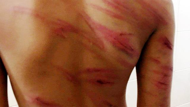 Trà Vinh: bé trai 8 tuổi bị cha dượng đánh đập dã man, liệu có bị xử lý hình sự?