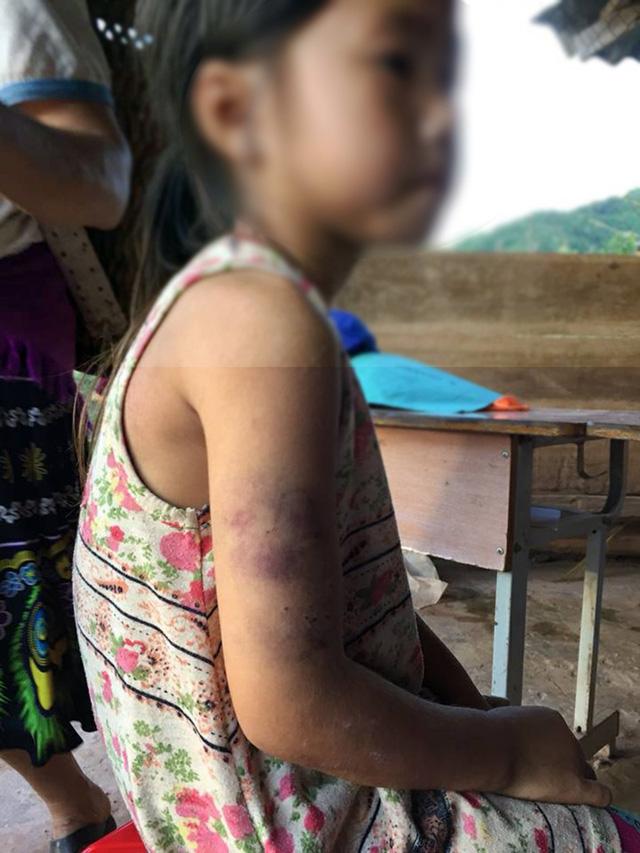 Điện Biên: Học sinh lớp 2 bị cô lấy thước sắt đánh bầm tím ở tay vì chữ viết xấu