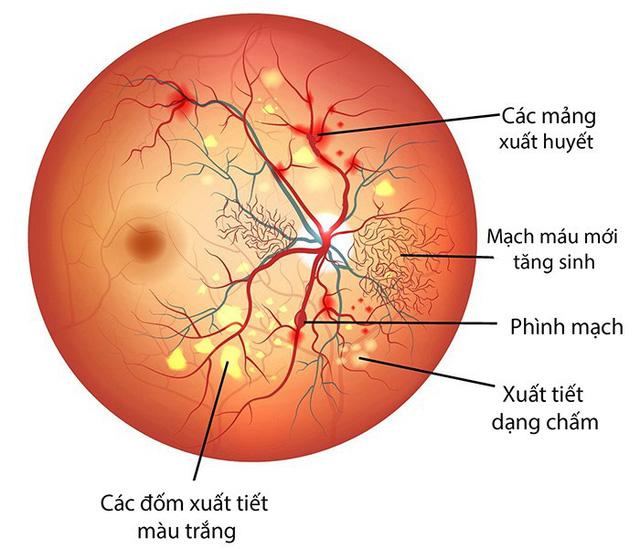 Bệnh võng mạc đái tháo đường - nguyên nhân chính gây mù lòa - Ảnh 1.