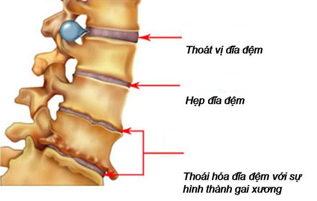 Thoái hóa cột sống ở người già và cách chữa - Ảnh 1.