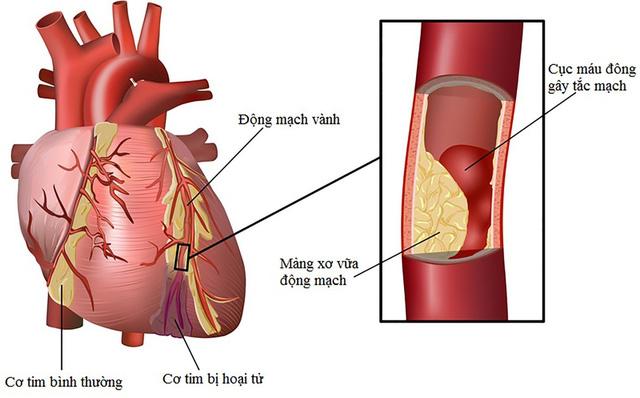Hẹp động mạch vành có nguy hiểm? - Ảnh 1.