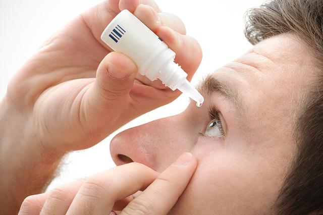Dễ mắc bệnh glôcôm khi dùng thuốc nhỏ mắt không theo chỉ định - Ảnh 1.