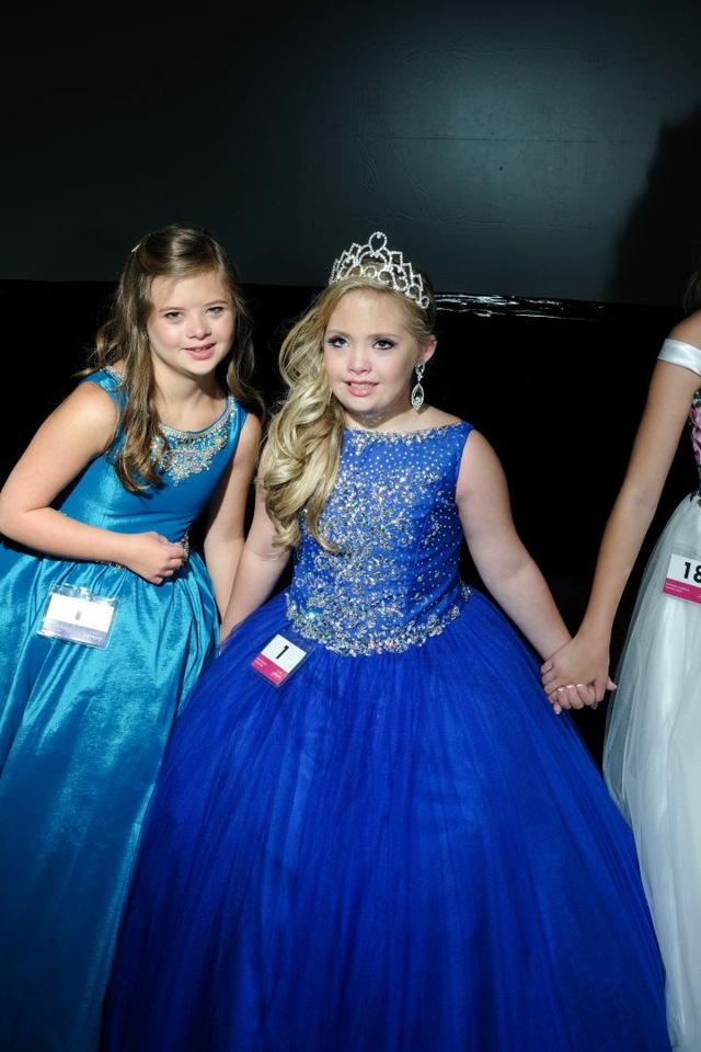 Miss Amazing: những nàng hoa hậu 'phi thường' - Ảnh 14.