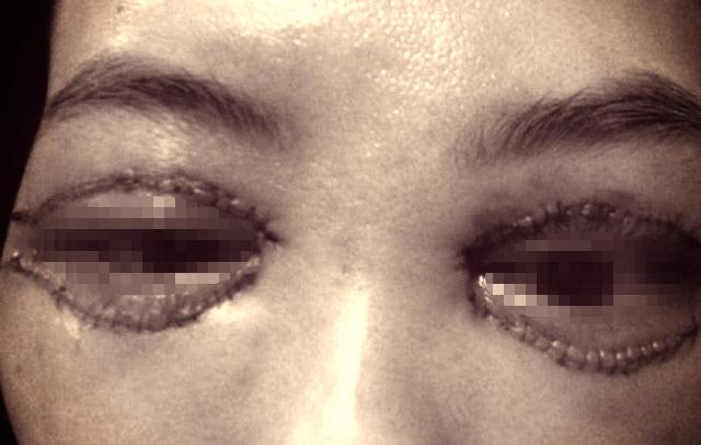 Sở Y tế Hà Nội vào cuộc vụ 'cắt mí mắt tại spa'